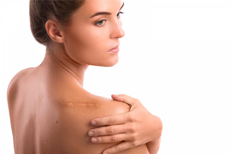 ¿Conoces los tipos de cicatrices?