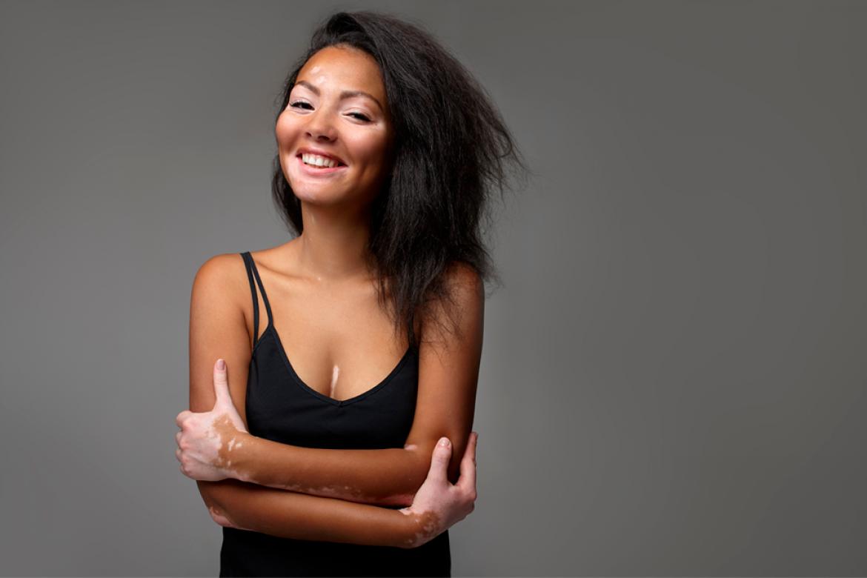 Vitíligo: La enfermedad que despigmenta tu piel
