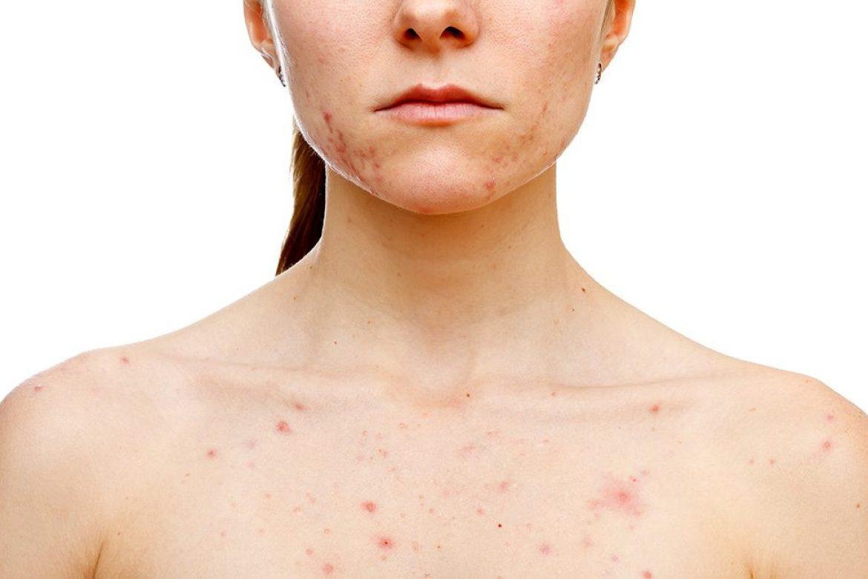 Aprendamos sobre el acné